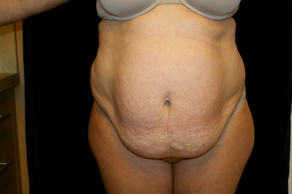 Tummy Tuck Gallery - Patient 39217587 - Image 1