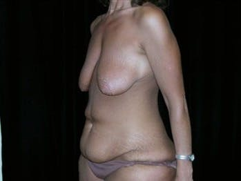 Mommy Makeover Gallery - Patient 39217583 - Image 1