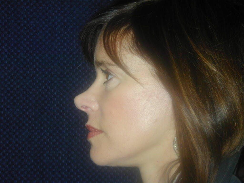Facelift Gallery - Patient 39217585 - Image 6