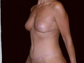 Mommy Makeover Gallery - Patient 39217583 - Image 2