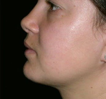 Liposuction Gallery - Patient 39217584 - Image 2