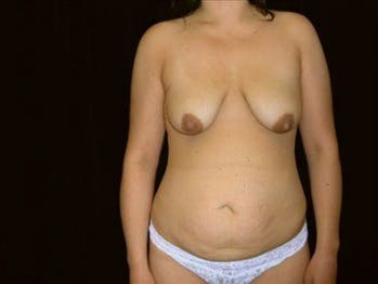 Mommy Makeover Gallery - Patient 39217586 - Image 1