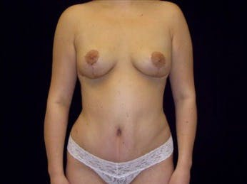 Mommy Makeover Gallery - Patient 39217586 - Image 2