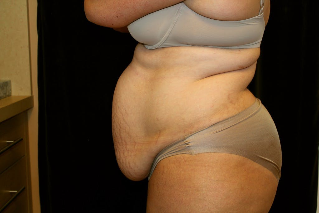 Tummy Tuck Gallery - Patient 39217587 - Image 6
