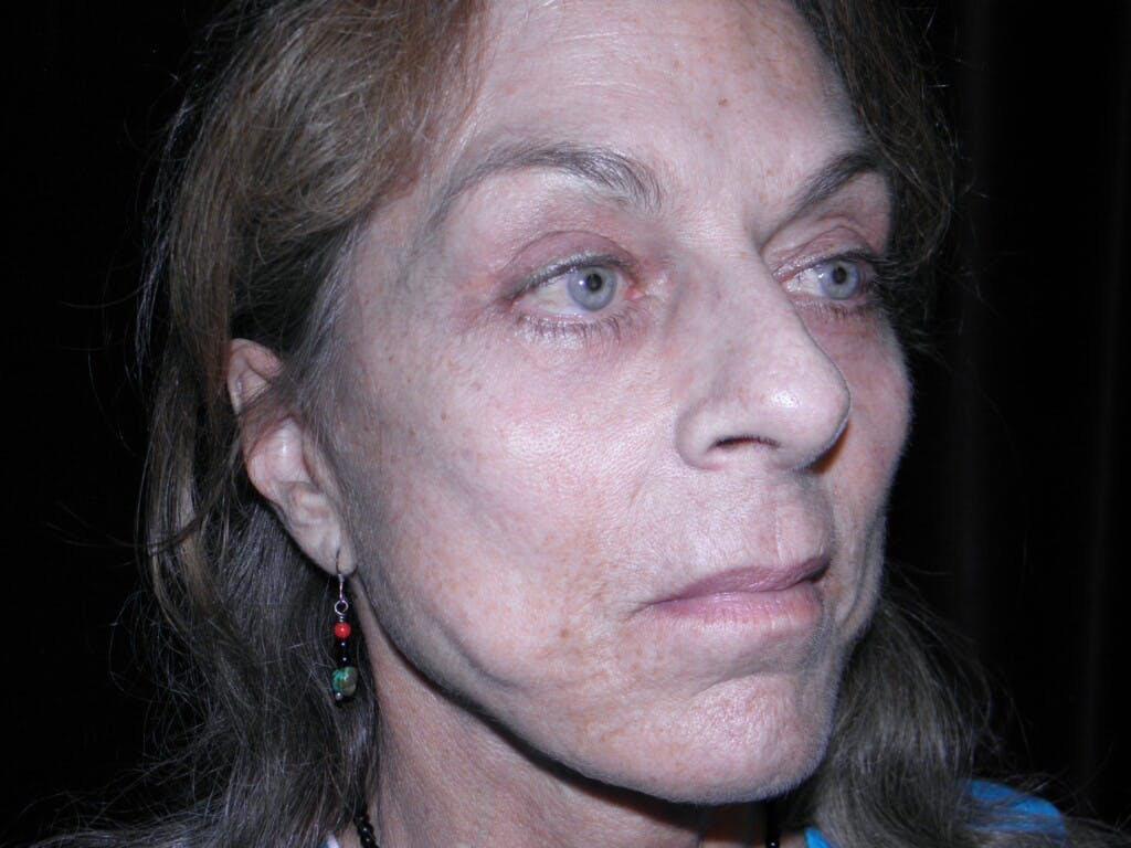 Facelift Gallery - Patient 39217599 - Image 1