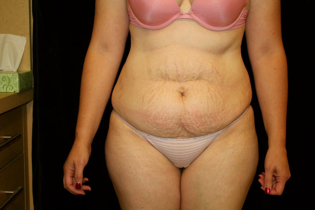Tummy Tuck Gallery - Patient 39217597 - Image 1