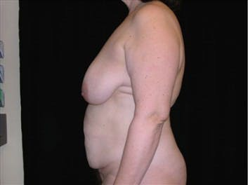 Mommy Makeover Gallery - Patient 39217590 - Image 1