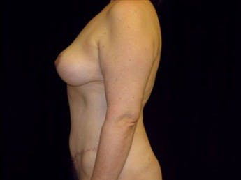 Mommy Makeover Gallery - Patient 39217590 - Image 2