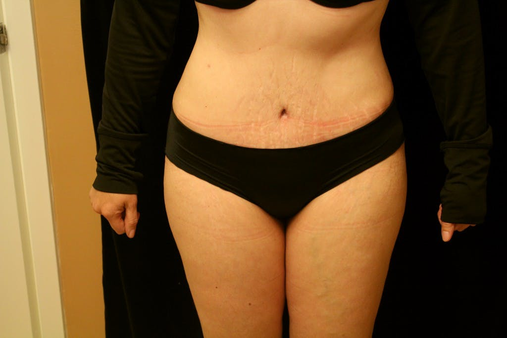 Tummy Tuck Gallery - Patient 39217597 - Image 2