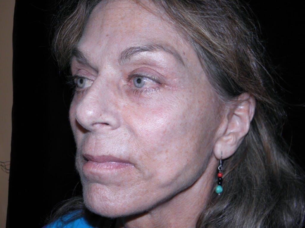 Facelift Gallery - Patient 39217599 - Image 3