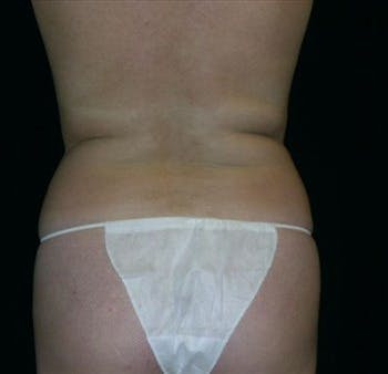 Liposuction Gallery - Patient 39217591 - Image 1