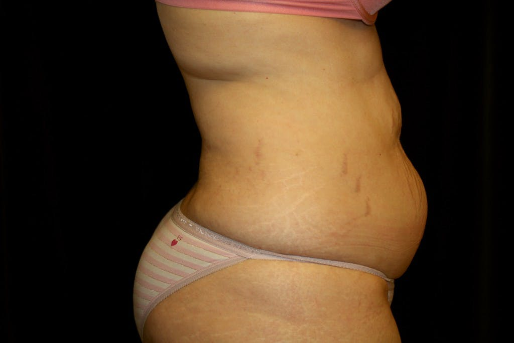 Tummy Tuck Gallery - Patient 39217597 - Image 3