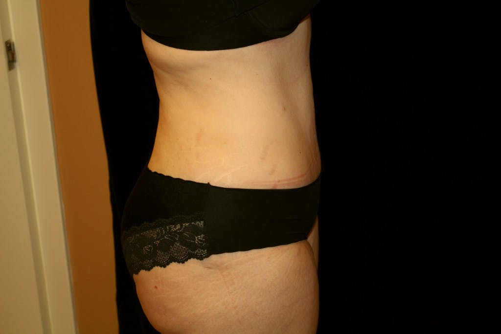 Tummy Tuck Gallery - Patient 39217597 - Image 4