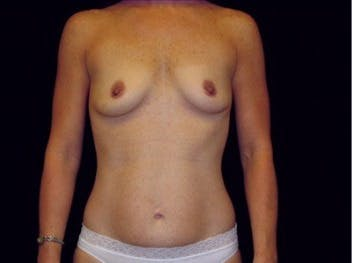 Mommy Makeover Gallery - Patient 39217592 - Image 1