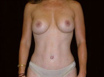 Mommy Makeover Gallery - Patient 39217592 - Image 2