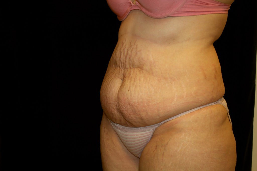 Tummy Tuck Gallery - Patient 39217597 - Image 5