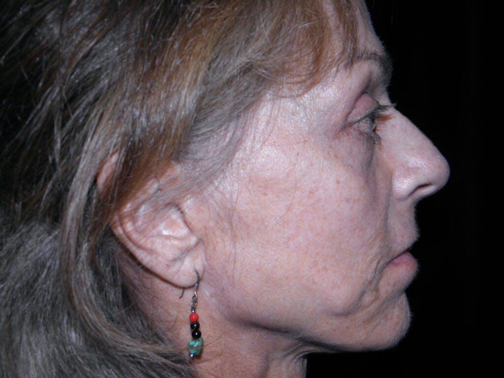 Facelift Gallery - Patient 39217599 - Image 5