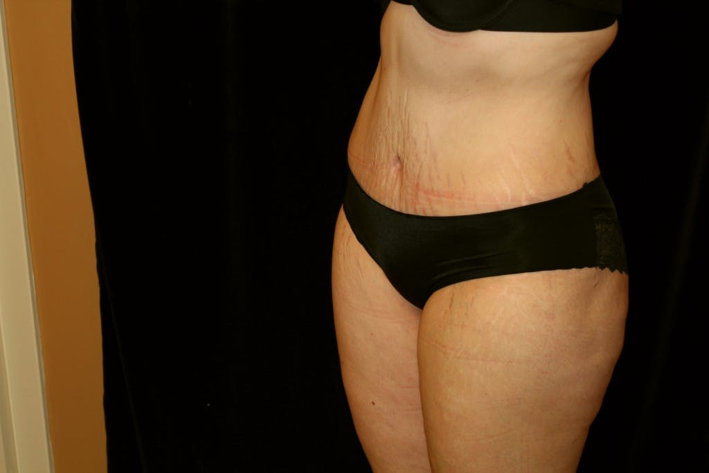 Tummy Tuck Gallery - Patient 39217597 - Image 6