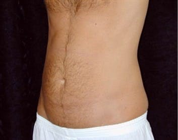 Liposuction Gallery - Patient 39217598 - Image 1