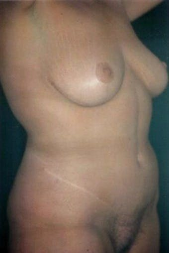 Mommy Makeover Gallery - Patient 39217600 - Image 2