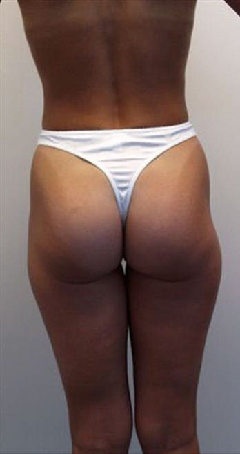 Liposuction Gallery - Patient 39217602 - Image 1