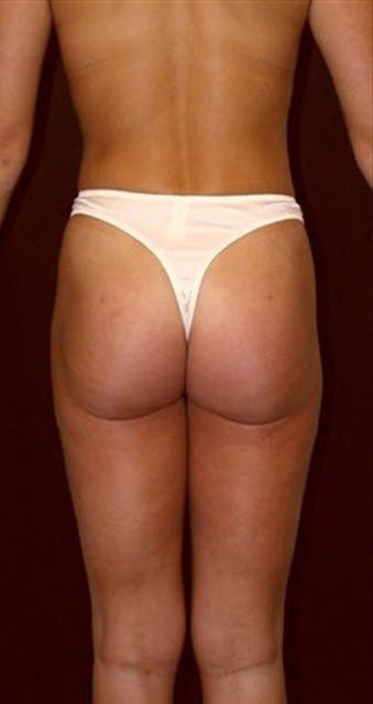 Liposuction Gallery - Patient 39217602 - Image 2