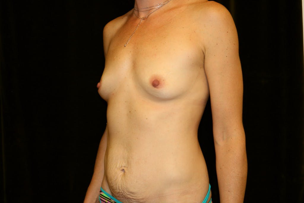 Mommy Makeover Gallery - Patient 39217608 - Image 1