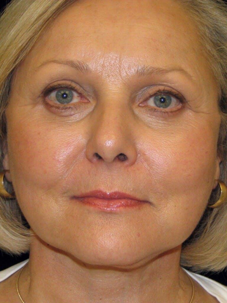 Facelift Gallery - Patient 39217613 - Image 2