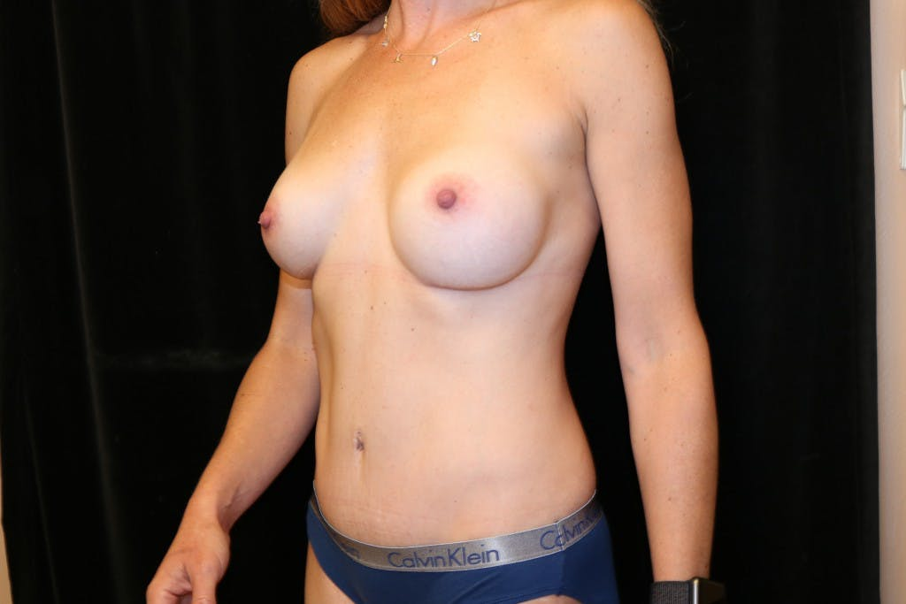 Mommy Makeover Gallery - Patient 39217608 - Image 2