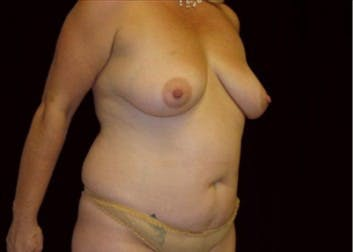Tummy Tuck Gallery - Patient 39217605 - Image 1