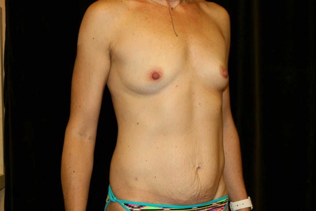Mommy Makeover Gallery - Patient 39217608 - Image 3