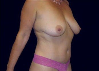 Tummy Tuck Gallery - Patient 39217605 - Image 2
