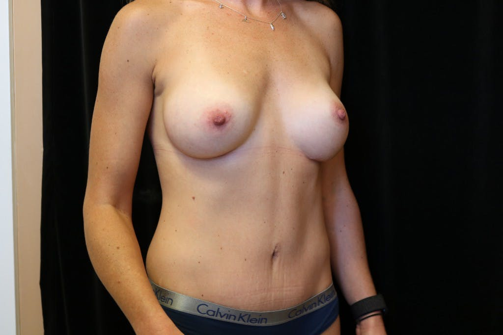 Mommy Makeover Gallery - Patient 39217608 - Image 4