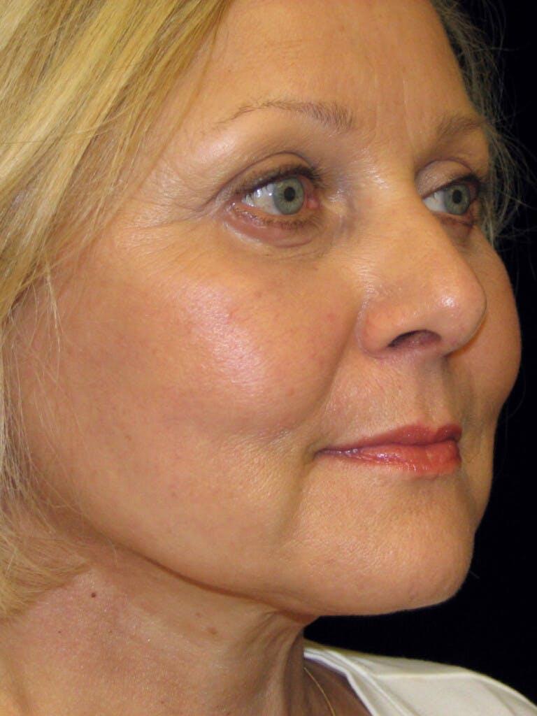 Facelift Gallery - Patient 39217613 - Image 4