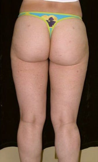Liposuction Gallery - Patient 39217606 - Image 2