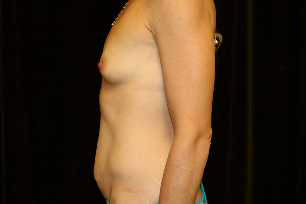 Mommy Makeover Gallery - Patient 39217608 - Image 5