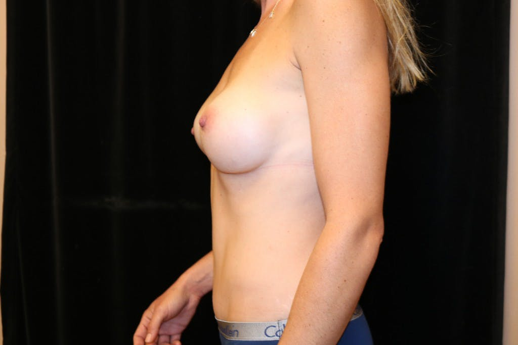 Mommy Makeover Gallery - Patient 39217608 - Image 6