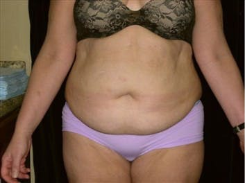Tummy Tuck Gallery - Patient 39217609 - Image 1