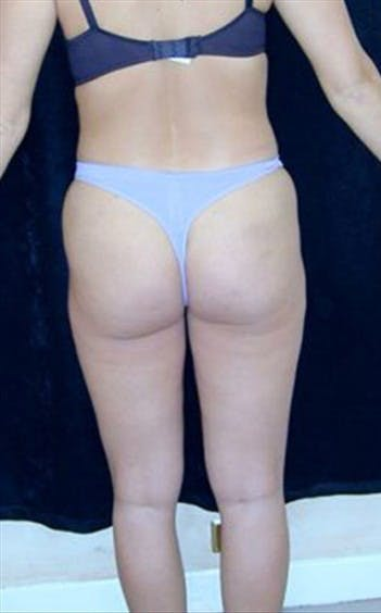 Liposuction Gallery - Patient 39217610 - Image 1