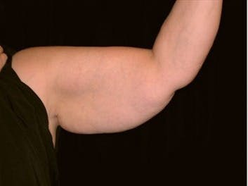 Arm Lift Gallery - Patient 39217616 - Image 1