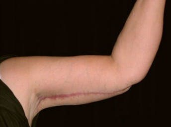 Arm Lift Gallery - Patient 39217616 - Image 2