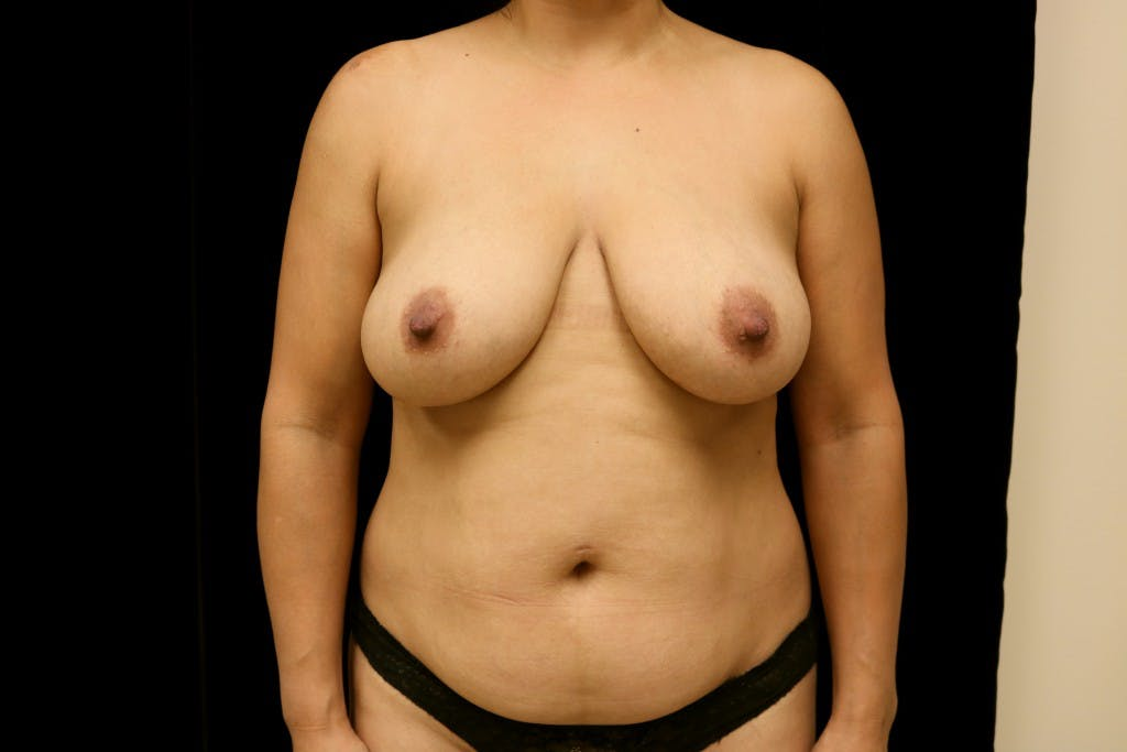 Mommy Makeover Gallery - Patient 39217619 - Image 1