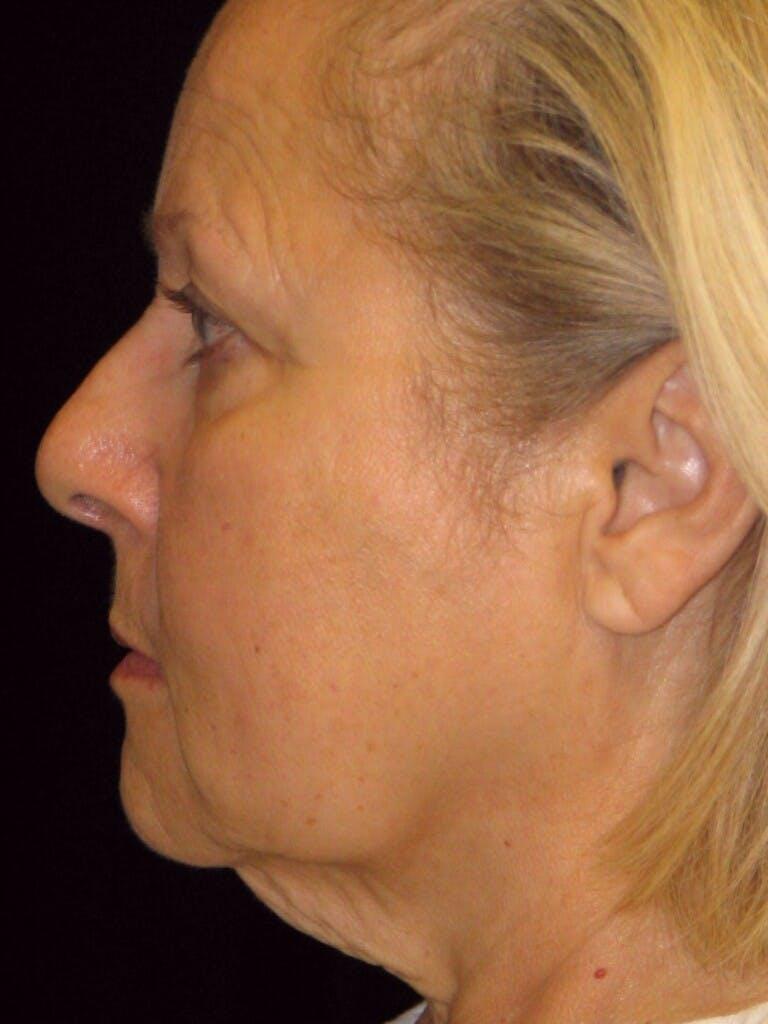 Facelift Gallery - Patient 39217613 - Image 7