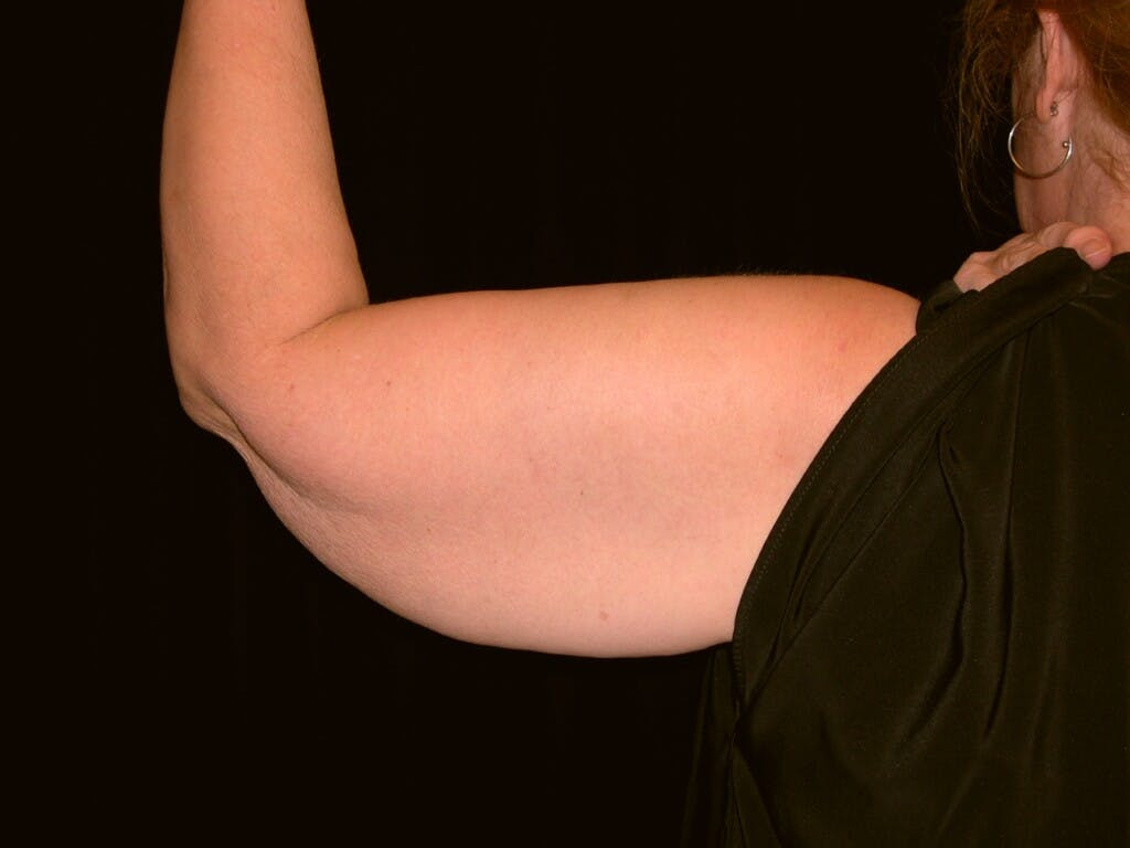 Arm Lift Gallery - Patient 39217616 - Image 3