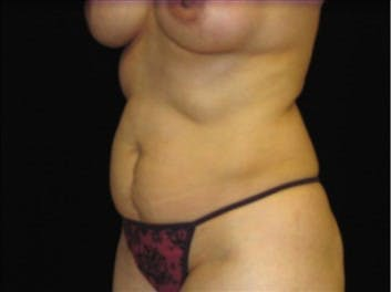 Tummy Tuck Gallery - Patient 39217611 - Image 1