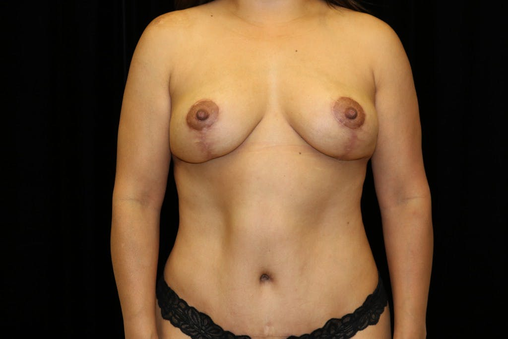 Mommy Makeover Gallery - Patient 39217619 - Image 2