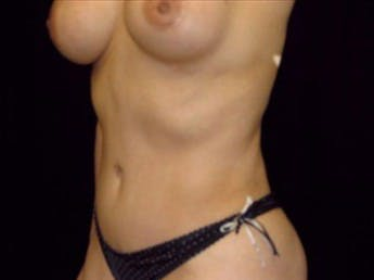 Tummy Tuck Gallery - Patient 39217611 - Image 2