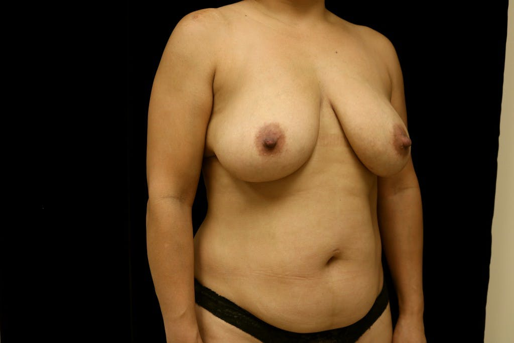 Mommy Makeover Gallery - Patient 39217619 - Image 3
