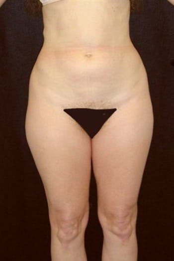 Liposuction Gallery - Patient 39217615 - Image 1