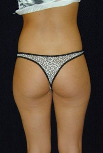 Thigh Lift and Buttocks Gallery - Patient 39217617 - Image 1